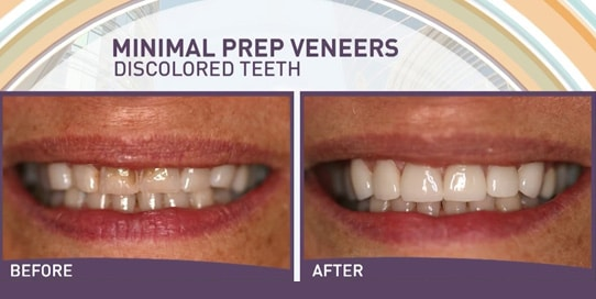 No Prep Veneers | Top Dentist Reviews
