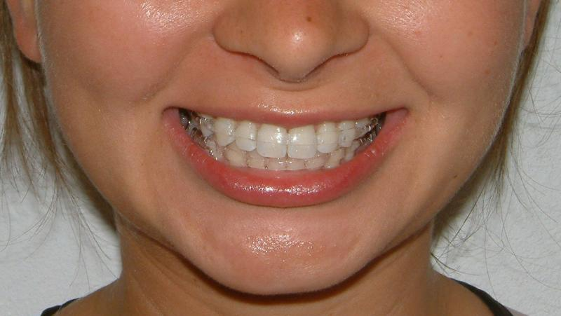 Reviews Types Wear Braces Retainers Dental To Of Dentist Top After