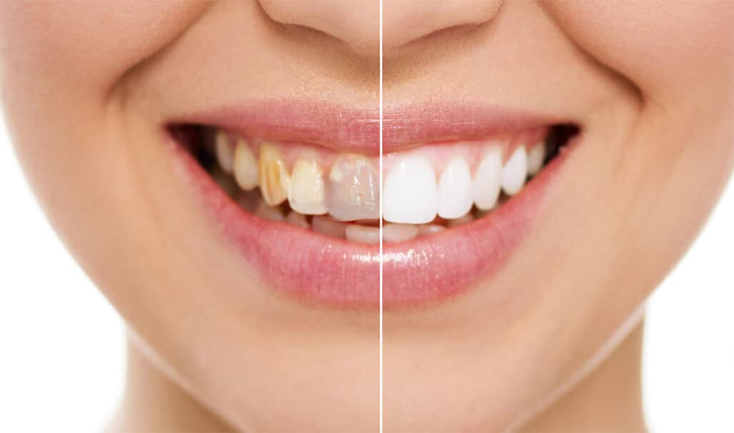 Do you want A Hollywood Smile Makeover? | Top Dentist Reviews